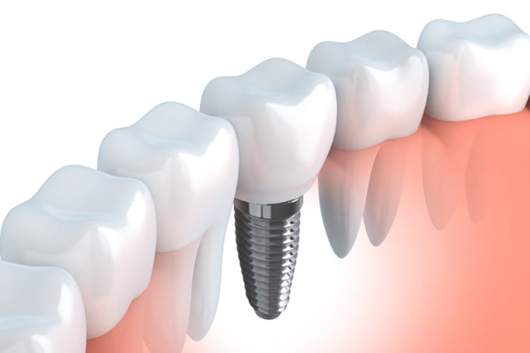 dental-implant-graphic