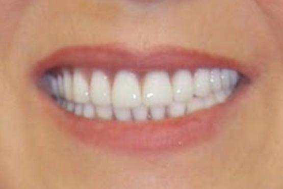 acevedo-dental-group-after1
