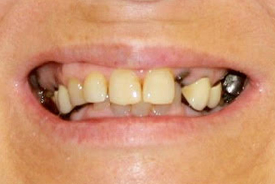acevedo-dental-group-before1
