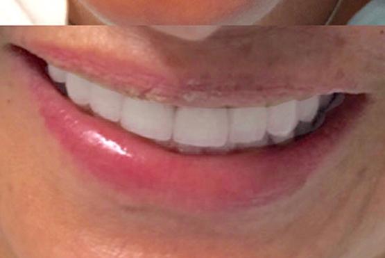 acevedo-dental-group-after2