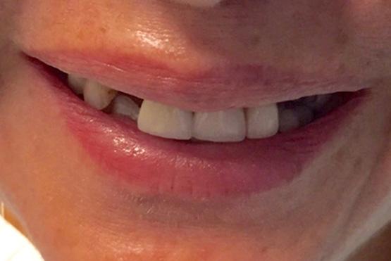 acevedo-dental-group-before2
