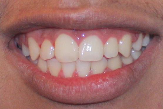 acevedo-dental-group-after4