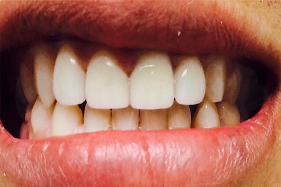 acevedo-dental-group-after5