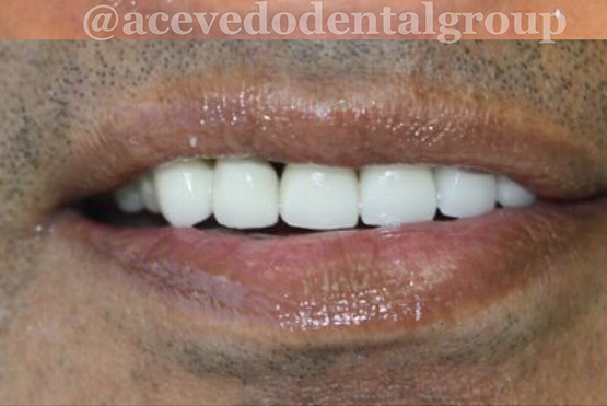 acevedo-dental-group-after6