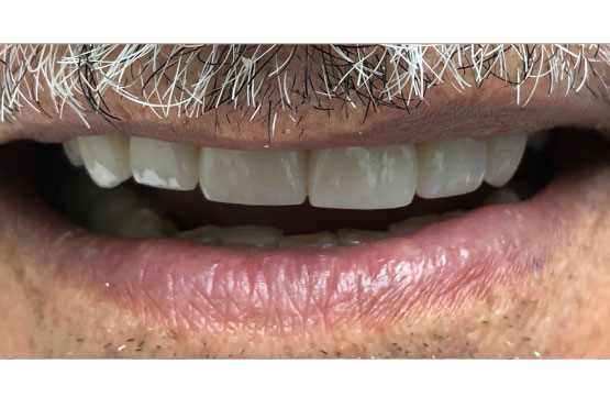 ontario-dentist-dental-implant-after