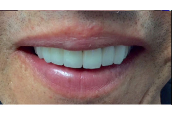 smile-gallery-dentist-santa-ana-after