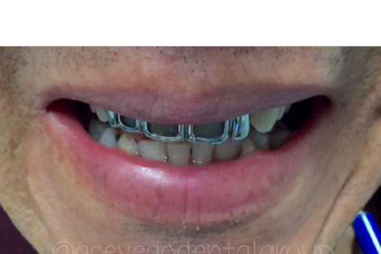 smile-gallery-dentist-santa-ana-before