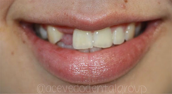 Acevedo Dental Group Dental Implant before/after treatment