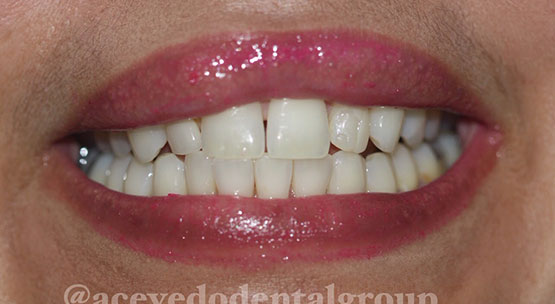 Acevedo Dental Group teeth whitening before and after