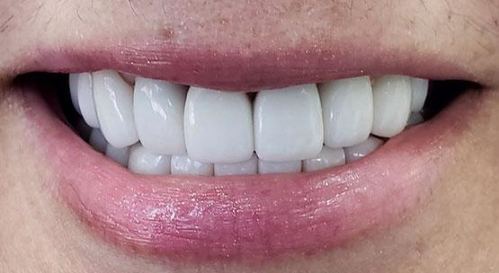 Acevedo Dental Group Cosmetic Dentistry