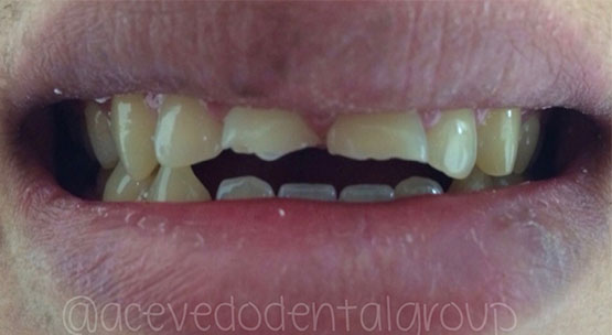 Acevedo Dental Group Cosmetic Dentistry