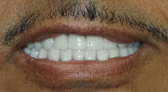 implants over dentures - after treatment