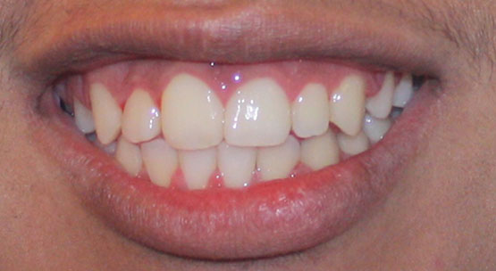 ortho-after-3