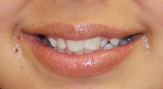 Our How To Get Braces For Free Statements