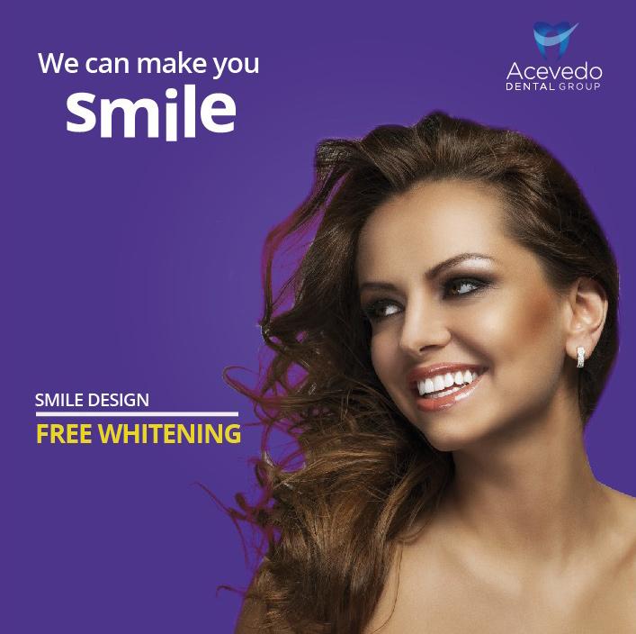 smile design - free whitening